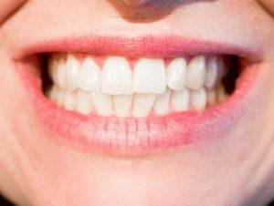 ¿Te lavas correctamente los dientes?